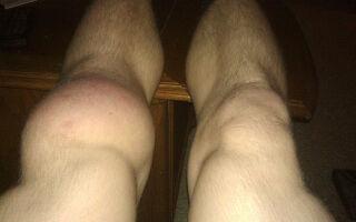 Бурсит коленного сустава – код по МКБ-10