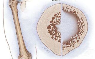Остеопороз: что это, симптомы, диагностика, лечение болезни в статье терапевта Веретюк В