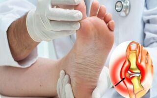 Как и чем лечить подагру на пальце ноги