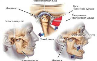 Артрит височно-нижнечелюстного сустава (ВНЧС): обзор, причины и лечение