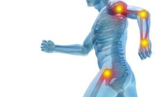 Боли в суставах: характер, лечение, диагностика