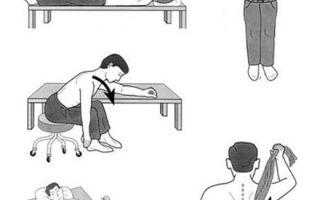 Лечебная гимнастика (ЛФК) при плечелопаточном периартрите