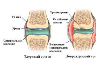 Виды артрита их особенности