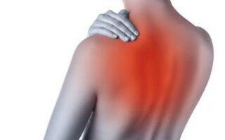 11 признаков спондилеза (спондилоартроза) грудного отдела — способы лечения