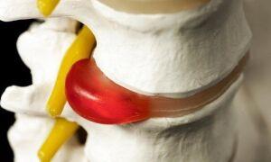 Гемангиома позвоночника поясничного, шейного и грудного отделов