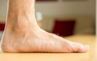Полный обзор бурсита голеностопного сустава: симптомы и лечение