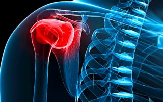 Симптомы и лечение периартрита плечевого сустава