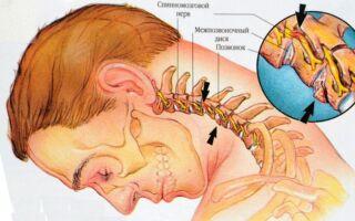 Лечение шейного остеохондроза позвоночника