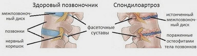 Визуально суставы