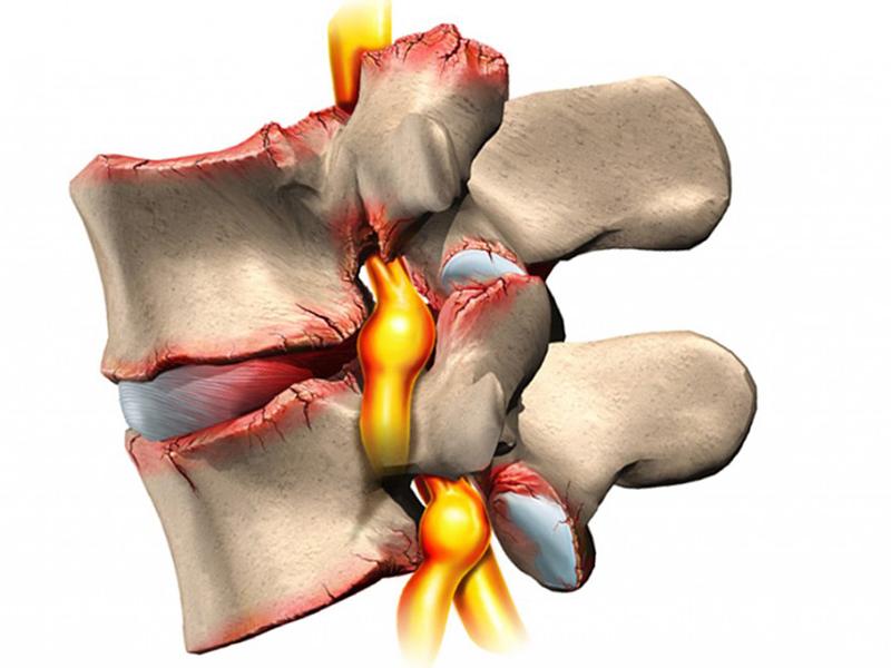 Болит спина в районе почек Почки